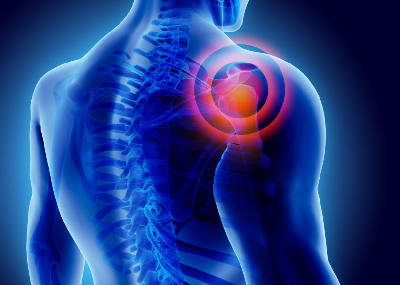 Shoulder pain treatment in forest hills ny